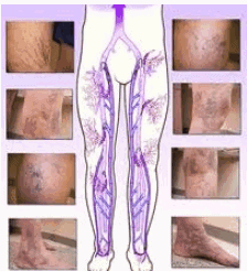 Vein images, diagram, spider vein, varicose vein, legs, foot, arms, ankles,