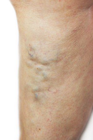 Man with varicose veins, Unsightly leg veins, bulging veins, spider veins, top varicose vein