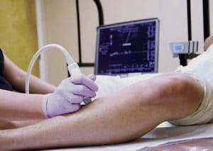 Varicose Veins Treatment Pittsburgh