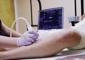 Varicose Veins Treatment Pittsburgh