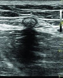 Ultrasound image, leg veins, glue varicose vein, treatment,