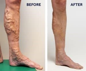 recovery after vein procedures, venaseal closure system, glue vein treatment