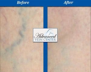 vein doctor near me, before and after vein treatment in Pittsburgh pa