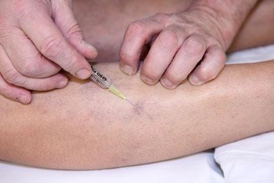 Foam Sclerotherapy, Sclerotherapy injection Spider vein lower leg calf