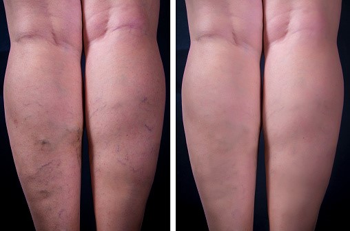 Veins before and after, Varicose, Spider, Laser, RF VNUS closure,