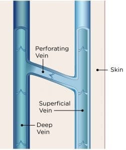 vein+structure,+legs,varicose+veins,Unsightly+leg+veins,bulging+veins,spider+veins,top+specialist (1)