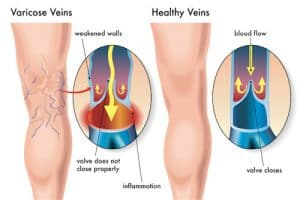 Blood flow, open valve, normal vein, varicose veins, diagram, vein structure, legs, varicose veins, Unsightly leg veins, bulging veins, spider veins, top specialist