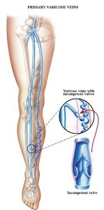 Primary varicose vein valve, diagram, Surgeon, Specializing in Varicose Vein Treatments,