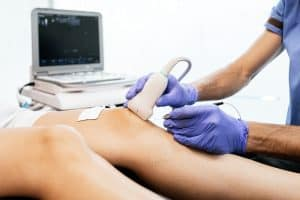 vein ultrasound
